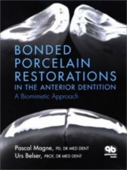 BONDED PORCELAIN RESTORATIONS IN THE ANTERIOR DE