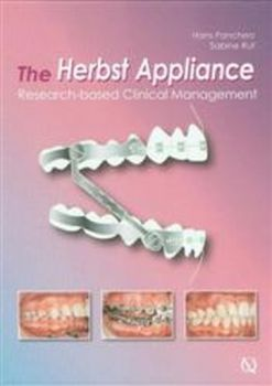 HERBST APPLIANCE_THE: Research-based Clinical Ma
