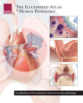 THE ILLUSTRATED ATLAS OF HUMAN PATHOLOGY: A Collection of 25 Anatomical Charts of Human Pathology